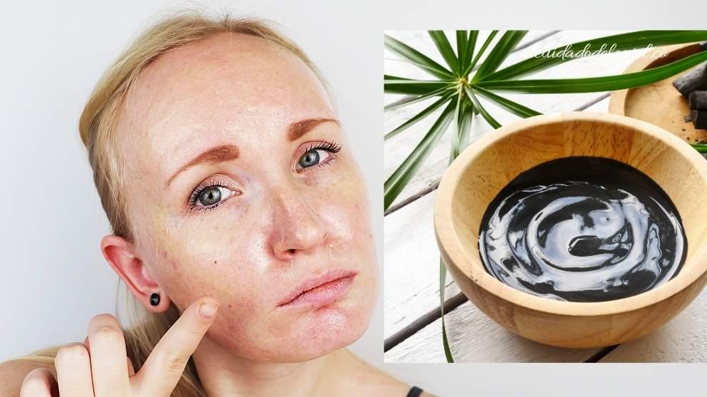 absorber aceites y zonas grasosas en la piel